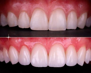 естетична стоматологія та ортопедія